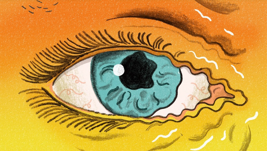 درمان تیک عصبی- دکتر کامیار سنایی روانشناس