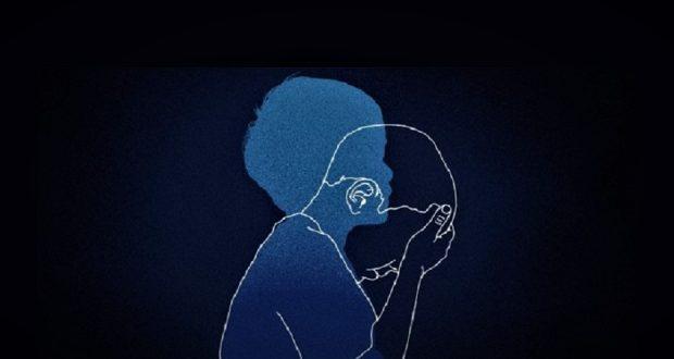 اختلال اضطراب جدایی- سایت روانشناسی دکتر کامیار سنایی