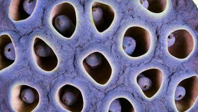 تصویر از ترس از حفره ها تریپتوفوبیا